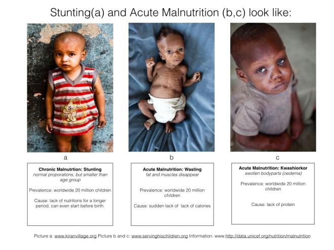 malnutrition three types.001